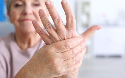 ¿Cómo saber si tengo síntomas de artritis?